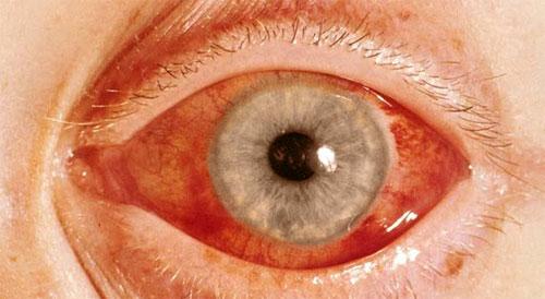 Норма глазного давления при глаукоме: что делать при ...